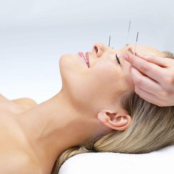 acupuntura-elche-alicante-Pilar-acupuntura-10_opt