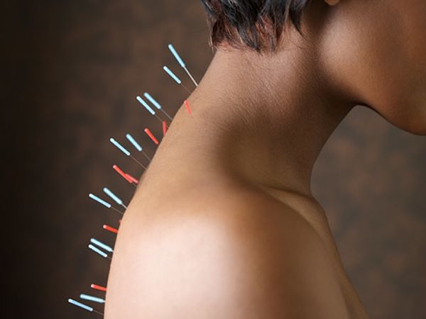 acupuntura-elche-alicante-Pilar-acupuntura-15_opt
