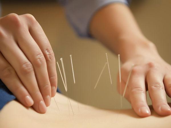 acupuntura-elche-alicante-Pilar-acupuntura-8_opt